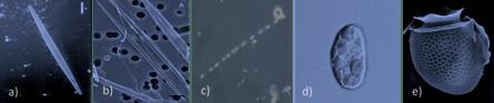 Fotomicrografías de las células de: a)  Pseudo-nitzschia cf. pseudodelicatissima; b)  P. cf. australis c) Leptocylindrus danicus d) Heterosigma akashiwo y e) Dinophysis acuminata.