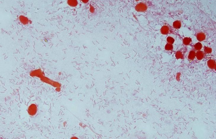 Formación de biofilm ayuda a la prevalencia y virulencia de Flavobacterium psychrophilum