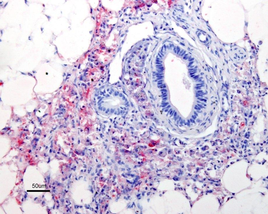 Histopatologisk undersøkelse av fisk der PD er påvist. Vevssnitt sett under mikroskop. Foto: Torunn Taksdal, Veterinærinstituttet.