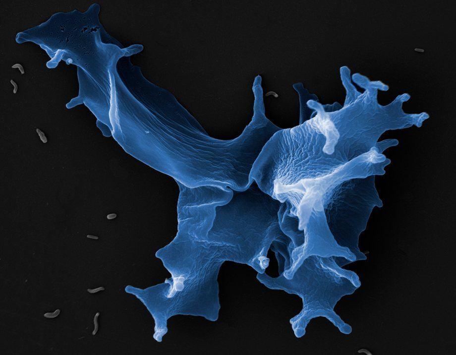 Amøben Paramoeba peruans endrer form ved behandling med hydrogenperoksid (H202) og ferskvann. Denne formendringen har sannsynligvis stor betydning for amøbens evne til å angripe gjellevevet. Foto: Jannicke Wiik-Nielsen, Veterinærinstituttet