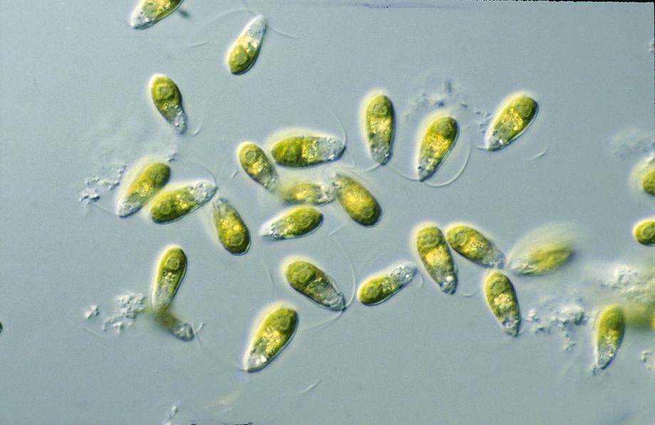 Illustrasjonsbilde av Dunaliella spp. Foto: CSIRO.