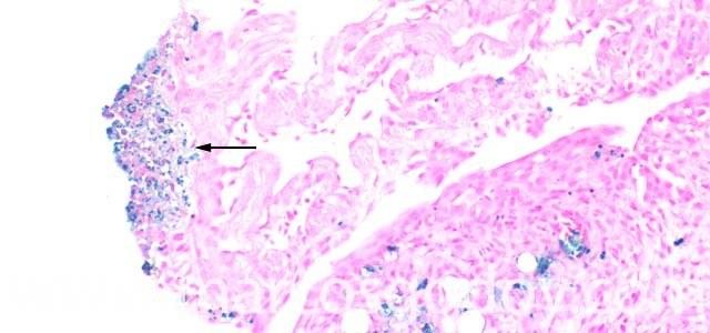 Salmón coho afectado por cuadro clínico de piscirickettsiosis. Imagen: Marcos Godoy.