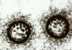 Hvorfor er noen virusstammer mer sykdomsfremkallende?