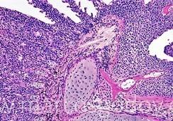Analizan histopatología de hiperplasia branquial asociada a infección por Flavobacterium sp.