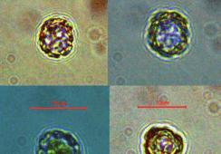 Detectan Pseudochattonella spp. en la región de Los Lagos