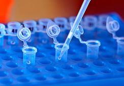 Chilenos descubren diferencias en la microbiota de peces infectados con Flavobacterium