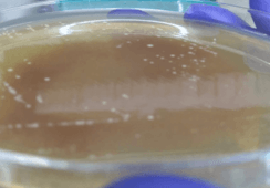 Piscirickettsia salmonis: ¿Patógeno primario u oportunista?
