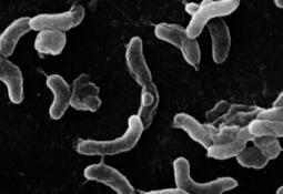 Científicos caracterizan vesículas de la membrana externa de Vibrio ordalii