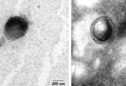 Vesículas producidas por Renibacterium podrían utilizarse para generar vacunas
