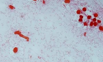 Estudio in vitro ayuda a esclarecer la patogenicidad de Flavobacterium psychrophilum
