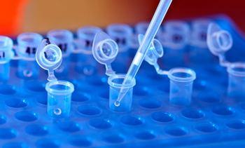 Estudio mide costo-efectividad del qPCR en la estrategia de detección de Piscirickettsia
