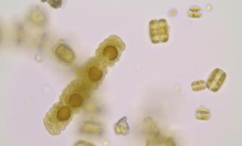Los efectos de microalga Cochlodinium sp para la salmonicultura nacional