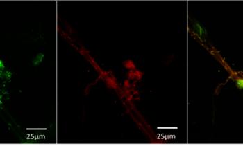 Chilenos descubren potencial actividad antimicrobiana de péptido en salmónidos